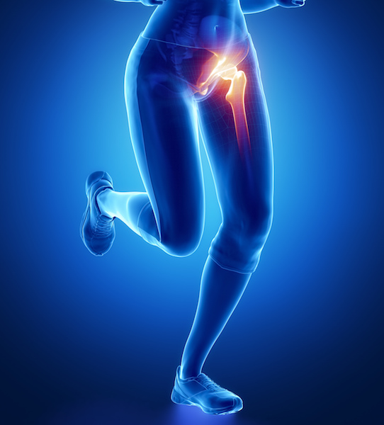 How Will You Know If You Need a Hip Replacement?